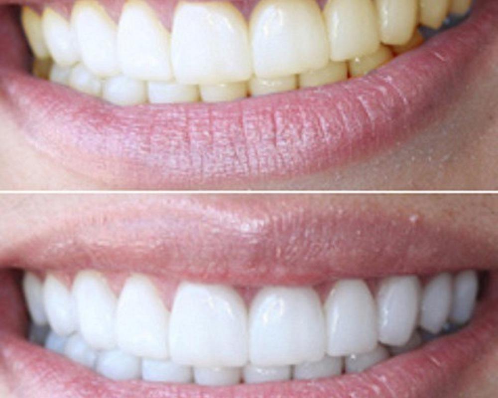 отбеливание зубов раменское